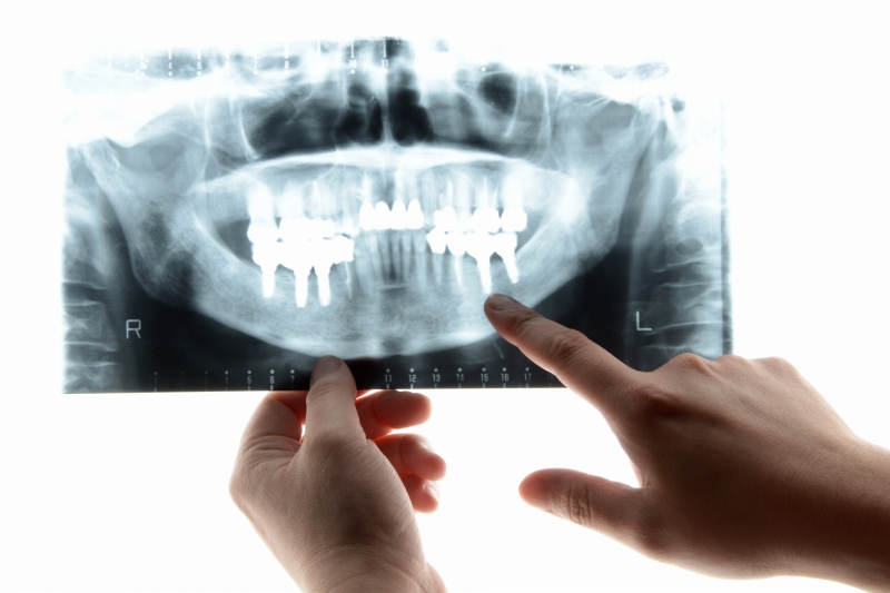 歯を失った状態を放置することのリスク